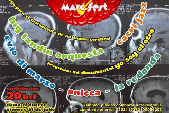 Marc Fest, concierto benéfico para Marc Villá